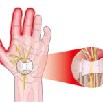 Are you starting to get Carpal Tunnel then A massage might help.